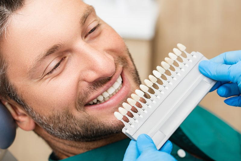 What are veneers? How much do they cost?